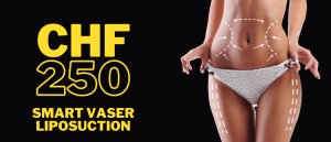 Liposuction Gift Card - Dr. Kish