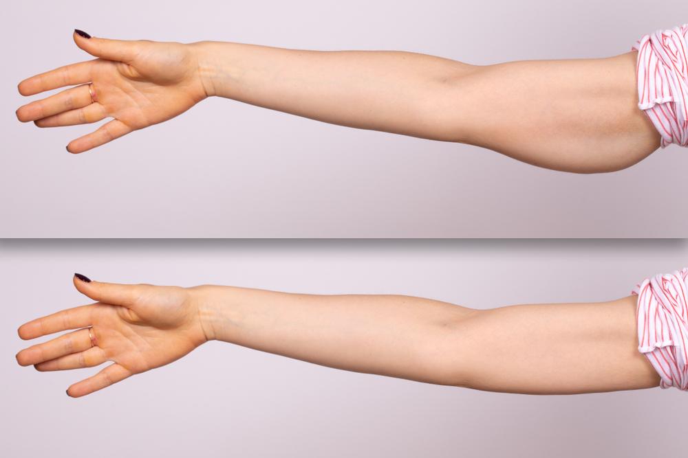 Upper Arm Lift by Dr. Kish